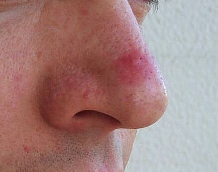 red nose pimple pain hurt like hell irritating how to cure natural remedies