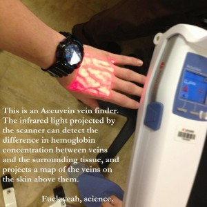 This is an Accuvein vein finder. The infrared light projected by the scanner can detect the difference in hemoglobin concentration between veins and the surrounding tissue, and projects a map of the veins on the skin above them.
