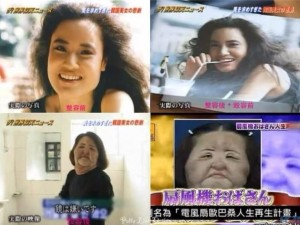 The worst before and after beauty surgery long term side effect