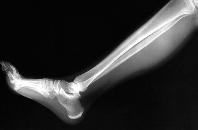 Bone fracture or broken bone and I mean human bone, no problem will grow new one